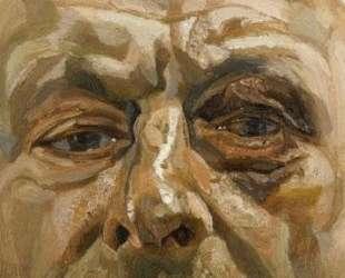 Автопортрет с синяком — Люсьен Фрейд